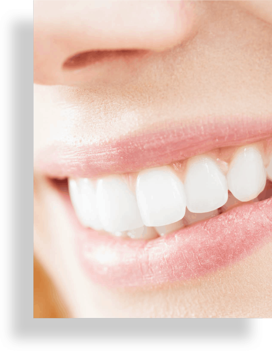 Close up of white smile